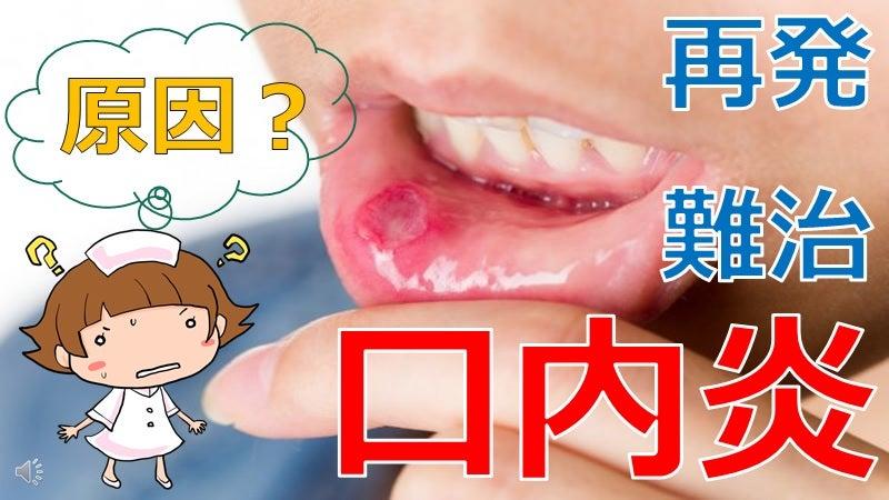 口内炎 原因