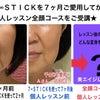 7∞STICKを使って7ヶ月後に個人レッスンに来てくださったAさん53歳のレッスン前のお写真☆の画像