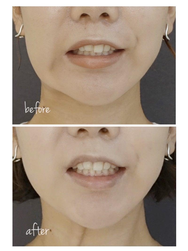 左右 非対称 口角