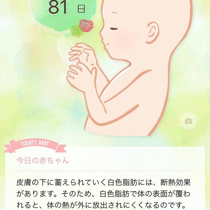 しゃっくり 妊娠 後期