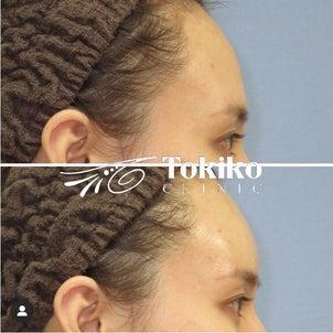 額のヒアルロン酸 菊澤亜夕子先生バージョンの画像