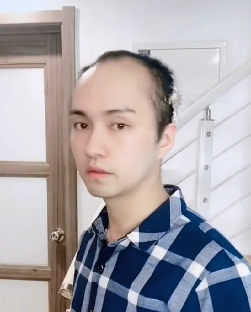薄毛 芸能人 カッコイイ
