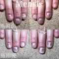 恵比寿 爪悩み改善ネイルサロン Mensis Nail Salon