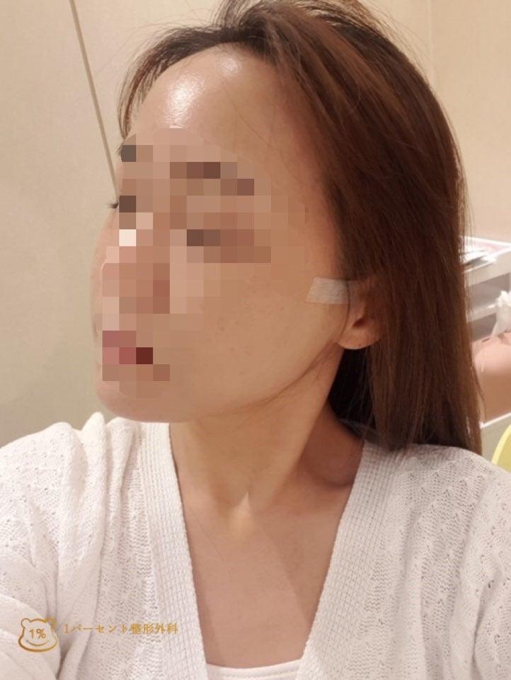 額脂肪注入_韓国美容整形_輪郭3点_前後写真