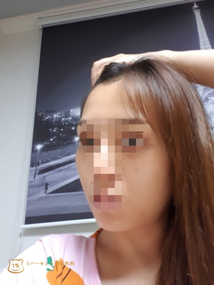 韓国美容整形_輪郭3点_前後写真_1パーセント整形外科