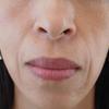 グロースファクターによるほうれい線治療 50代女性⑦の画像