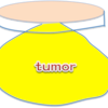 皮膚・皮下腫瘍切除術についての画像