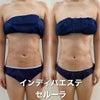 二の腕とお腹の脂肪吸引手術後のお客様です。(*'▽')の画像
