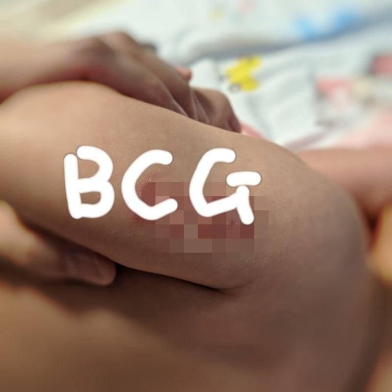 ない 代 跡 Bcg 40 日本では毎年約18,000人が新たに発症!古くて新しい感染症、「結核」にご注意を!