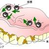 デンチャープラークと義歯洗浄の必要性の画像