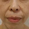 グロースファクターによるほうれい線治療 50代女性⑧の画像