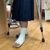 足首のねんざ テーピング指導も行っています!の画像