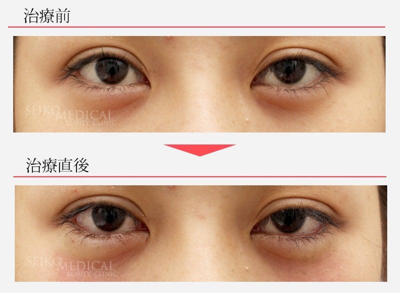 『垂れ目形成術(下眼瞼下制術、グラマラスライン)の直後の症例解説』