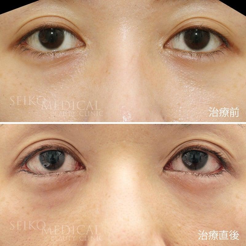 『30代女性、たれ目形成術(下眼瞼下制術、グラマラスライン)の直後の症例解説』