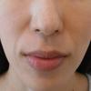 グロースファクターによるほうれい線治療 40代女性⑳の画像