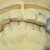 上顎部分金属床義歯の症例(No.157)の画像