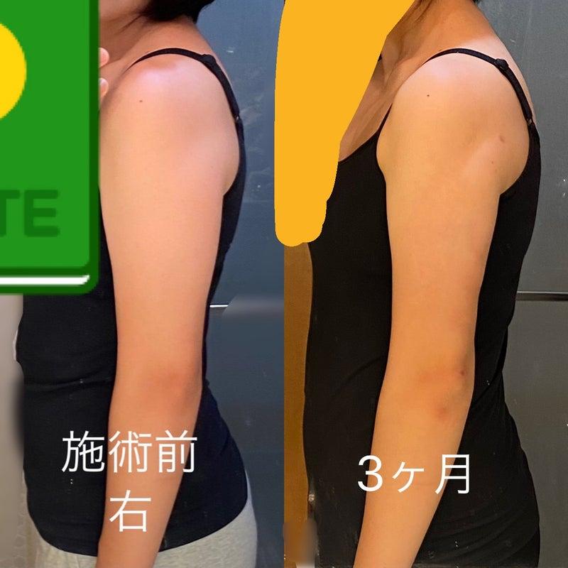 脂肪 ブログ 二の腕 吸引