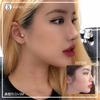 韓国整形・鼻整形]鼻整形リアルビフォーアフターの画像