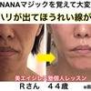 ほうれい線が消えた顔の筋トレ法☆家でできなくても施術に通えば変わるという安心感☆Rさん44歳の画像