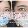 YOUTUBE更新★目の美容整形の画像