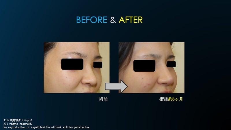 隆鼻術+鼻尖縮小術〜眉間プロテ〜術前&術後②
