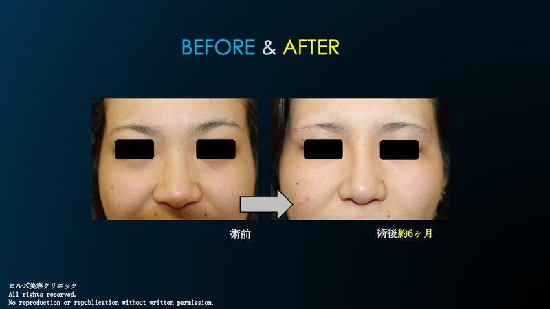 隆鼻術+鼻尖縮小術〜眉間プロテ〜術前&術後①