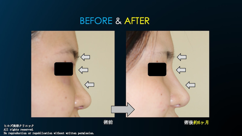 隆鼻術+鼻尖縮小術〜眉間プロテ〜術前&術後④