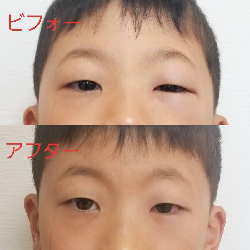 た 腫れ とき が 目