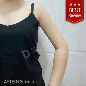 腕の脂肪吸引 ♥ ドリームラインクリニック ♥ 韓国体型専門病院の画像