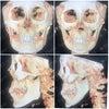 患者さまの声☆輪郭手術体験記46の画像