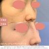 鼻整形ならSBC鹿児島院の画像