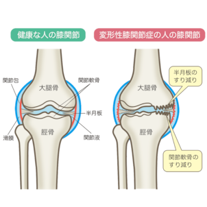 変形性膝関節症についての画像