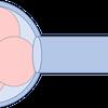 PGT-Aによる胚盤胞生検後の新生児の転帰の画像