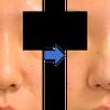 鼻筋を細くしたい、の選択肢。の画像