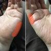 手の腱の断裂か?の画像