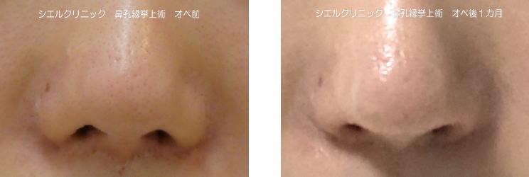 鼻孔縁挙上術