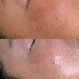 画像 40代女性顔のツヤ目の大きさ輪郭が目見えて変わったので嬉しい の記事より 2つ目