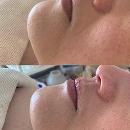 画像 40代女性顔のツヤ目の大きさ輪郭が目見えて変わったので嬉しい の記事より 1つ目
