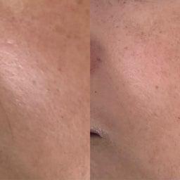 画像 40代女性顔のツヤ目の大きさ輪郭が目見えて変わったので嬉しい の記事より 5つ目