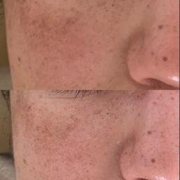 画像 40代女性顔のツヤ目の大きさ輪郭が目見えて変わったので嬉しい の記事より 3つ目