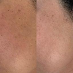 画像 40代女性顔のツヤ目の大きさ輪郭が目見えて変わったので嬉しい の記事より 4つ目