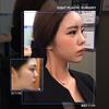 韓国整形・鼻整形]気になる団子鼻!!!どうにかしたい!!の画像