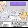 メニエール病と一次呼吸の関係性の画像