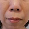 グロースファクターによるほうれい線治療 50代女性⑨の画像