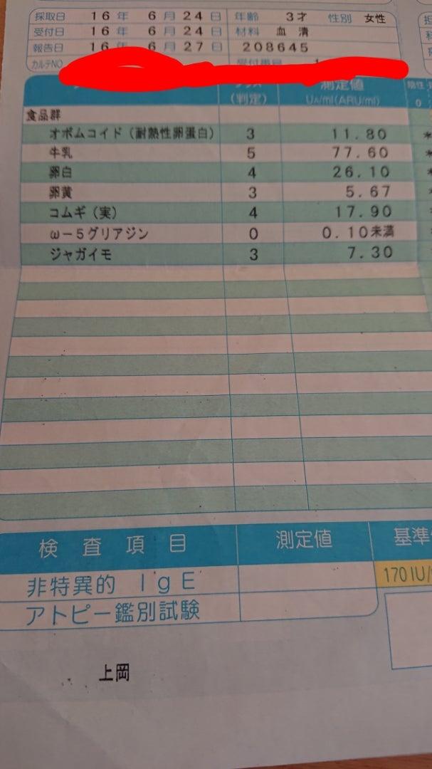 何科 アレルギー検査 紫外線アレルギーの検査!何科の病院で費用はいくらくらい?