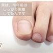 半年で大変身!足の爪にも起きる「爪甲剥離(症)」という症状。