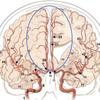 くも膜下出血で脳梗塞ってなんだ?の画像