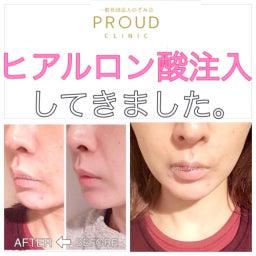 画像 3ケ月恒例!湘南美容外科でサーマタイトニングを受けてきました。 の記事より 6つ目