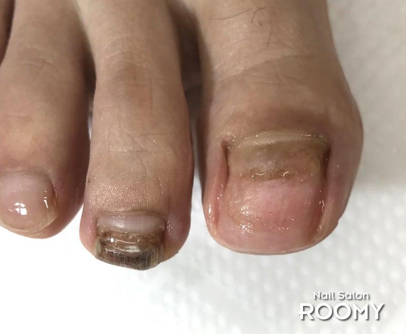 足 の 親指 の 爪 が 剥がれ た
