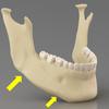 ヒアルロン酸リフト・顎形成・糸リフトの組み合わせ治療の画像